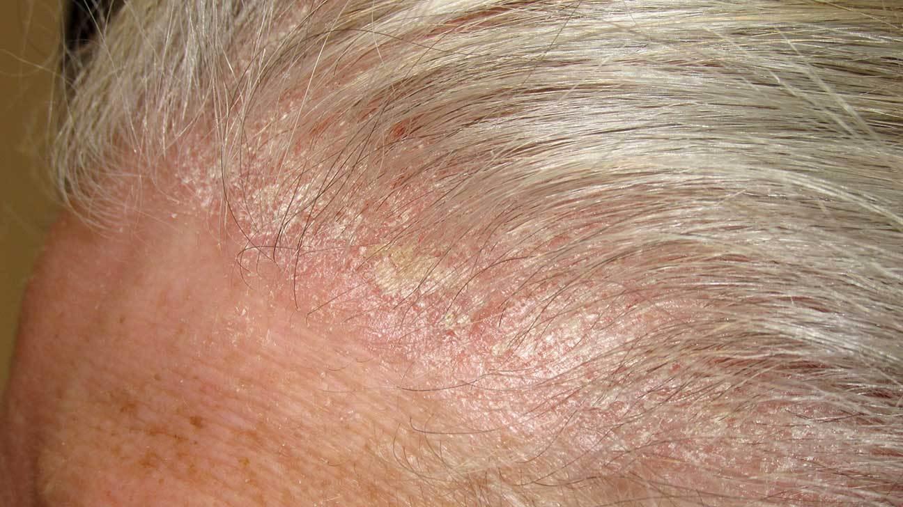 Bệnh vảy nến da đầu nhẹ