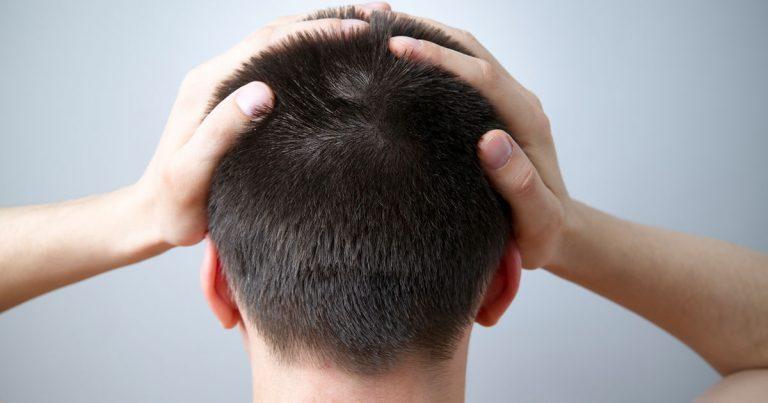 Gàu HAY Bệnh vảy nến da đầu