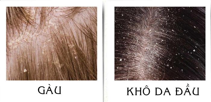 Gàu và khô da đầu
