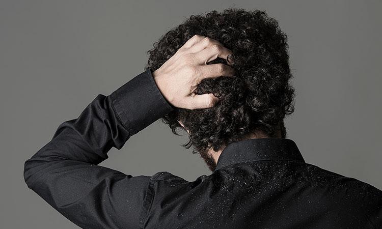 Gàu và rụng tóc: Từ Nguyên nhân đến Điều trị