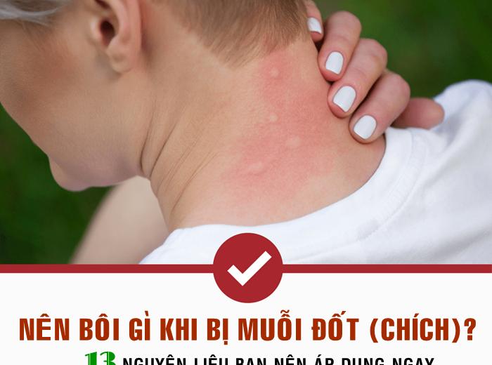 Nên bôi gì khi bị muỗi đốt (chích) để hết mẩn đỏ và ngứa ngáy nhanh chóng?